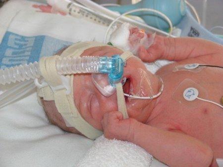newborn meg